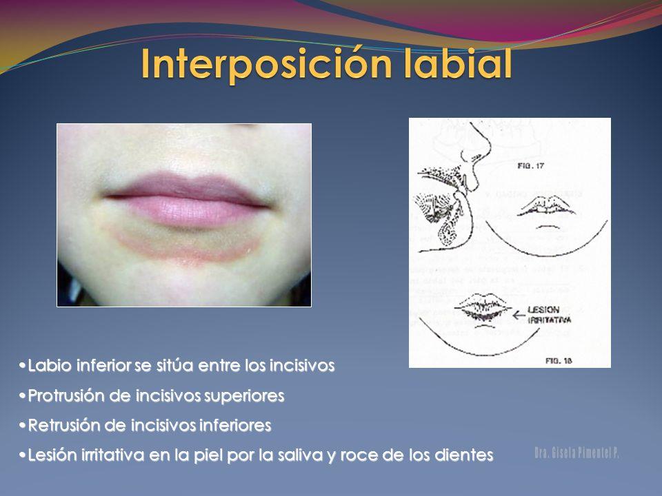 Labio inferior se sitúa entre los incisivos