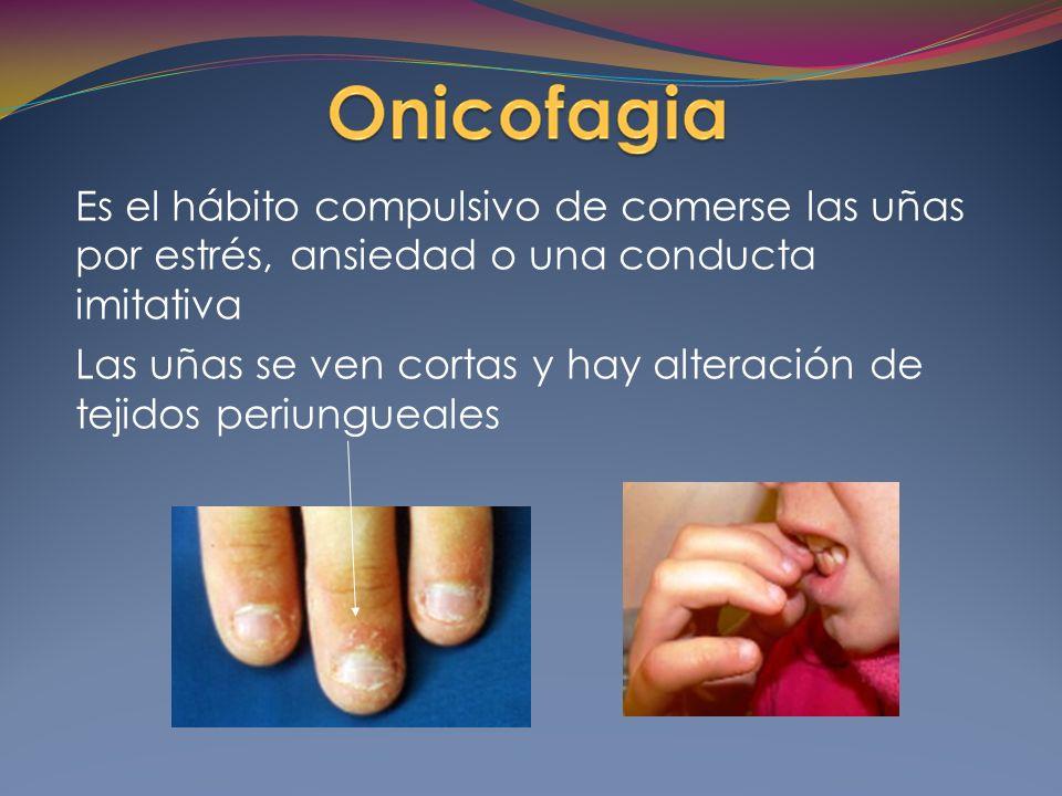 Es el hábito compulsivo de comerse las uñas por estrés, ansiedad o una conducta imitativa