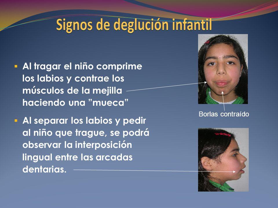 Al tragar el niño comprime los labios y contrae los músculos de la mejilla haciendo una mueca