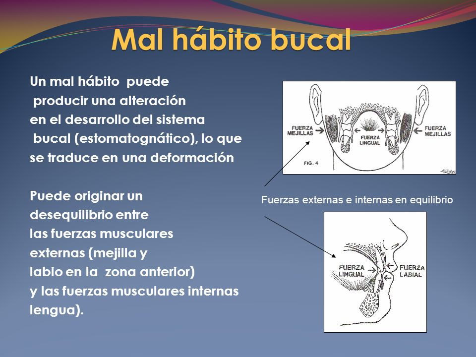 Mal hábito bucal Hábitos no fisiológicos son: la succión de dedo
