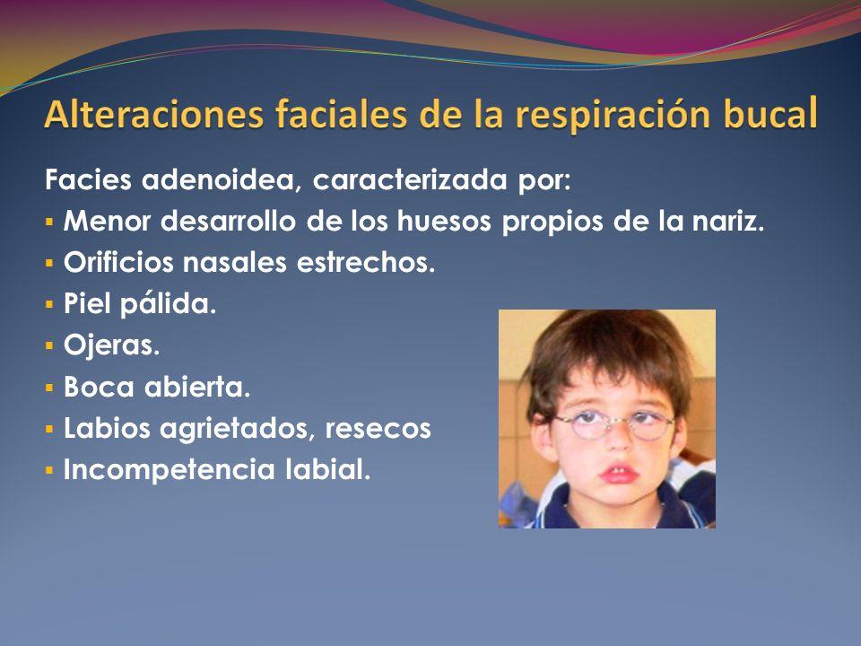 Facies adenoidea, caracterizada por: