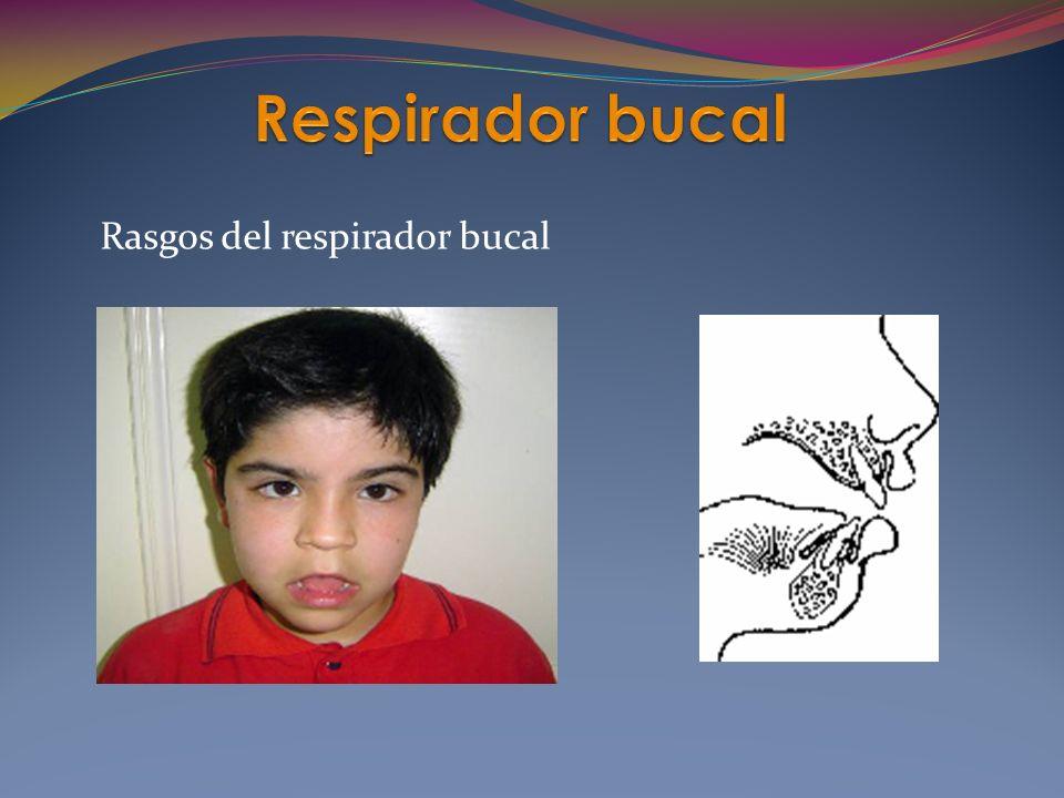 Rasgos del respirador bucal