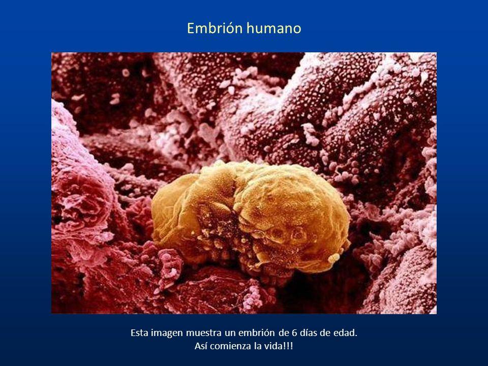 Esta imagen muestra un embrión de 6 días de edad.
