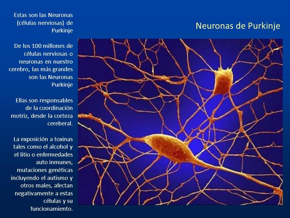 Estas son las Neuronas (células nerviosas) de Purkinje
