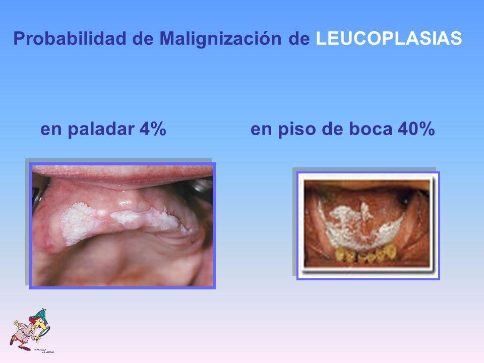 Probabilidad de Malignización de LEUCOPLASIAS en paladar 4% en piso de boca 40%