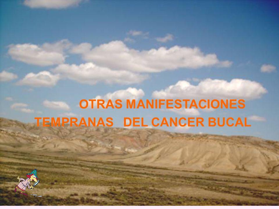 OTRAS MANIFESTACIONES