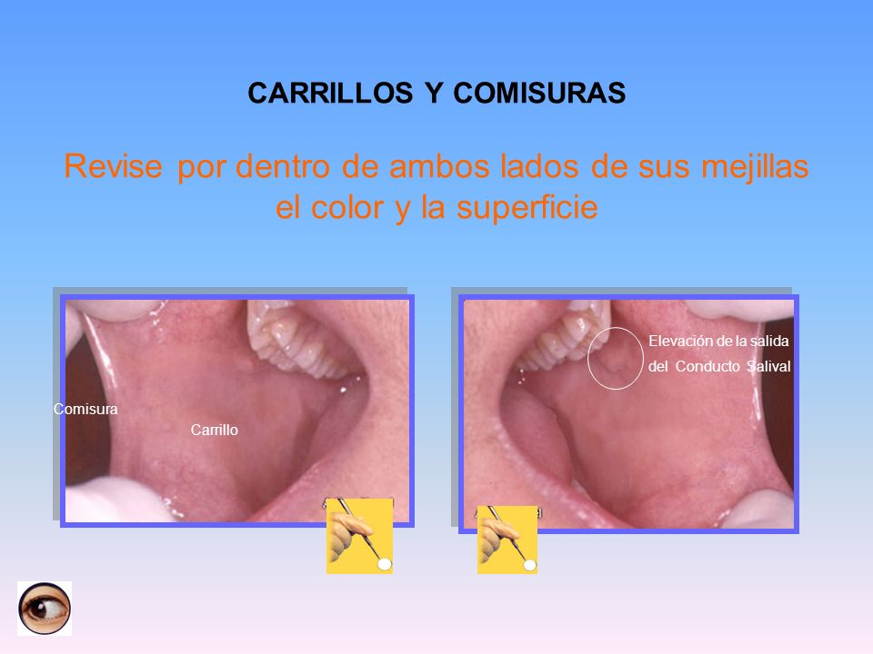 CARRILLOS Y COMISURAS Revise por dentro de ambos lados de sus mejillas el color y la superficie