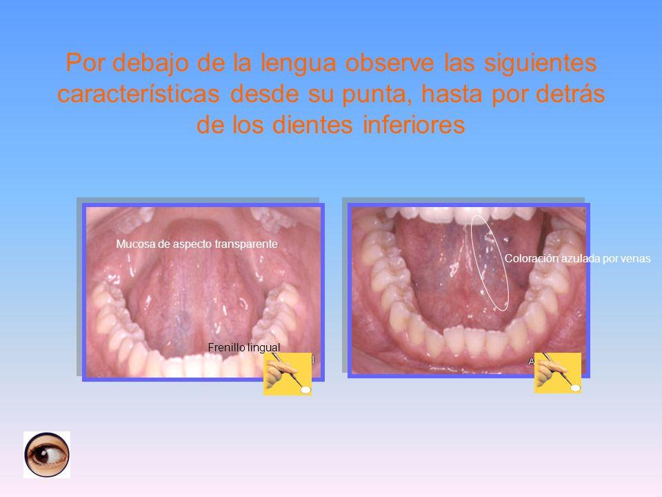 Por debajo de la lengua observe las siguientes características desde su punta, hasta por detrás de los dientes inferiores