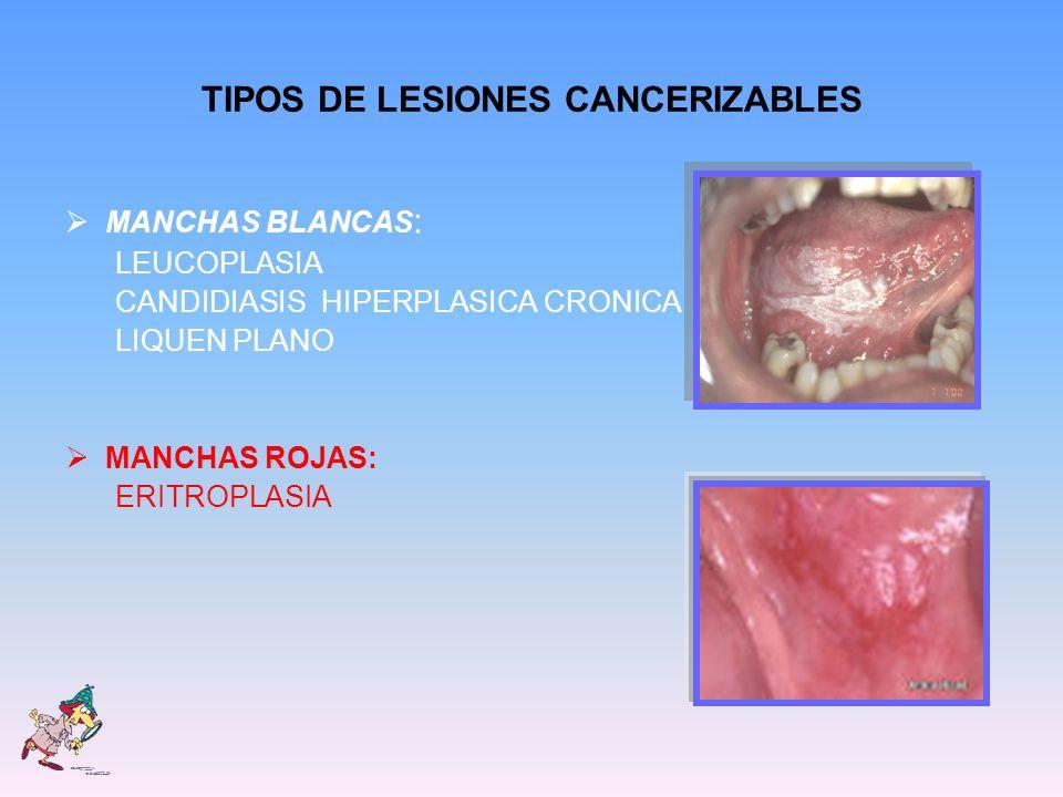 TIPOS DE LESIONES CANCERIZABLES