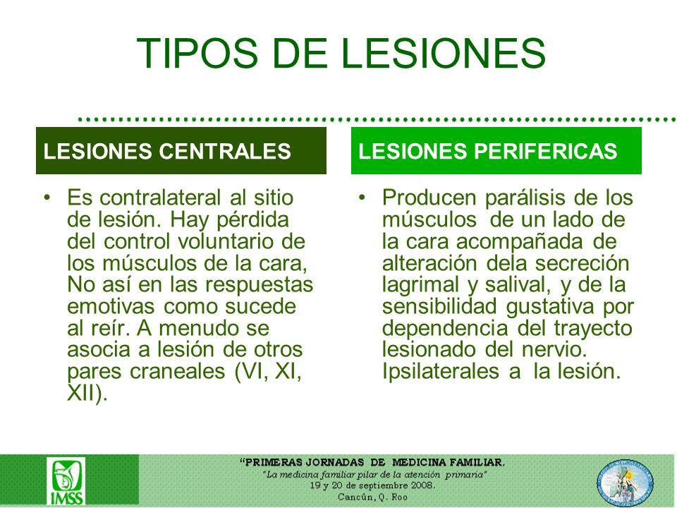 TIPOS DE LESIONES LESIONES CENTRALES. LESIONES PERIFERICAS.