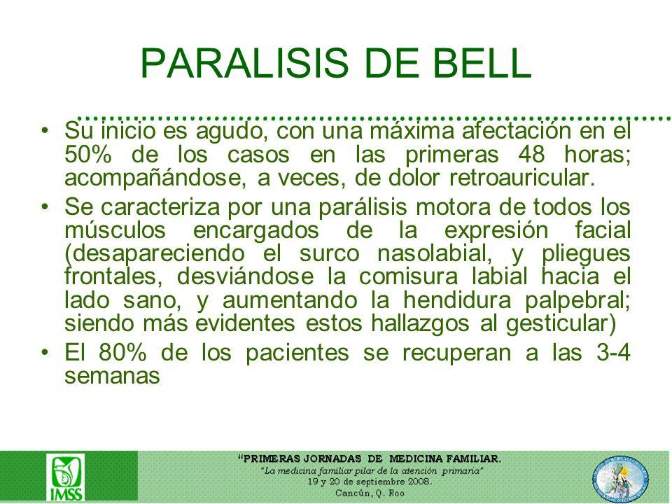 PARALISIS DE BELL
