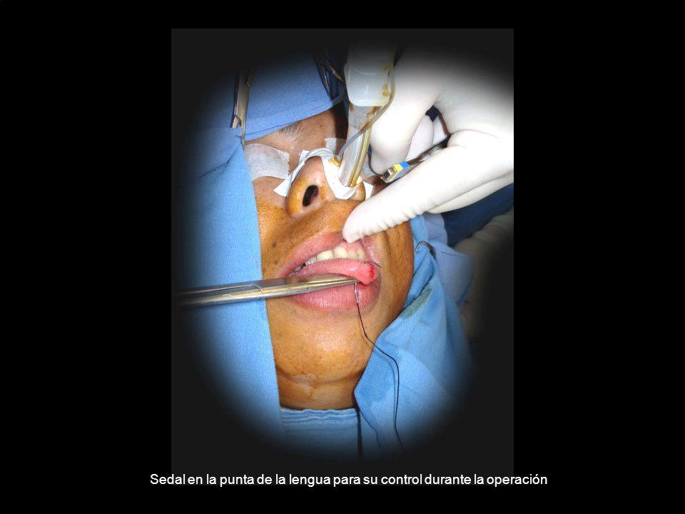 Sedal en la punta de la lengua para su control durante la operación