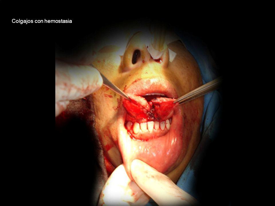 Colgajos con hemostasia