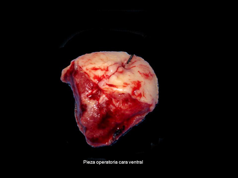 Pieza operatoria cara ventral