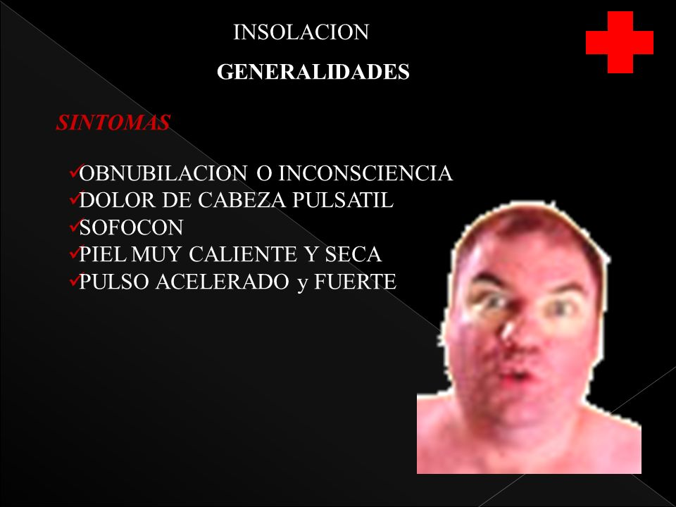 INSOLACION GENERALIDADES. SINTOMAS. OBNUBILACION O INCONSCIENCIA. DOLOR DE CABEZA PULSATIL. SOFOCON.