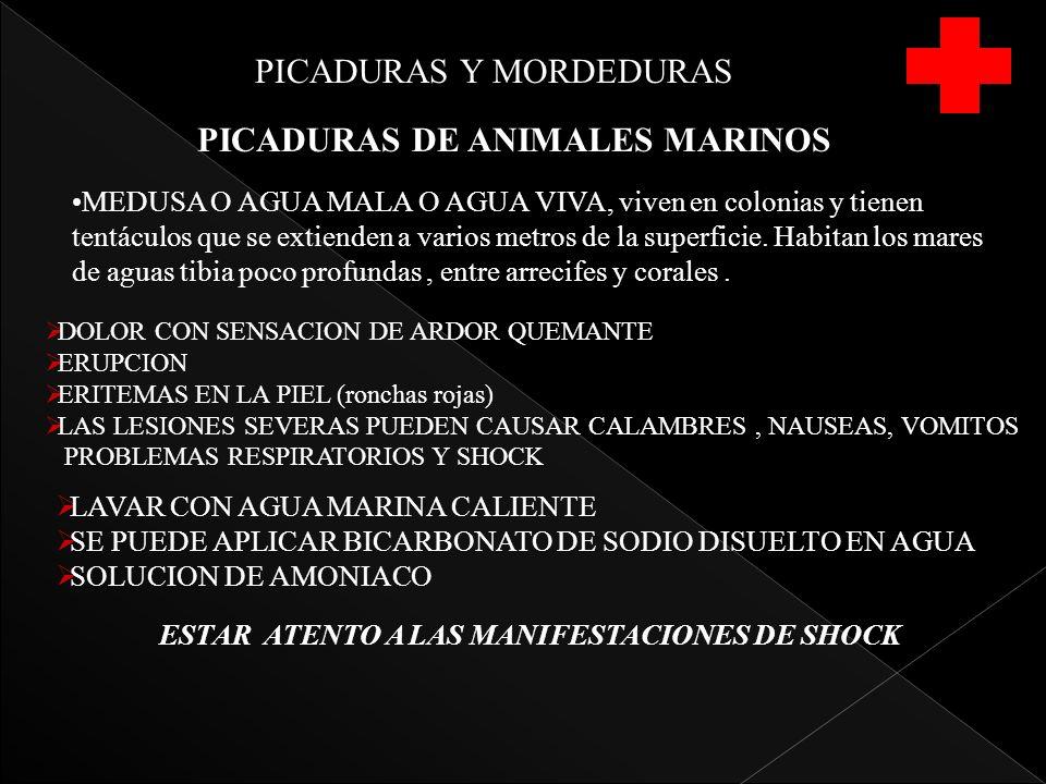 PICADURAS DE ANIMALES MARINOS