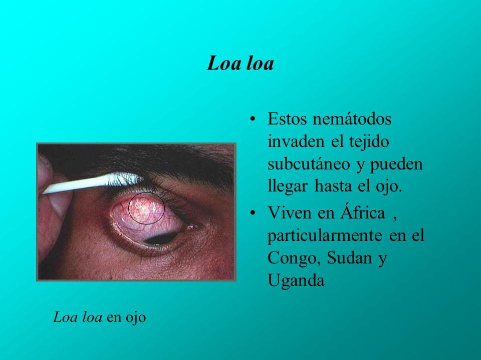 Loa loa Estos nemátodos invaden el tejido subcutáneo y pueden llegar hasta el ojo. Viven en África , particularmente en el Congo, Sudan y Uganda.