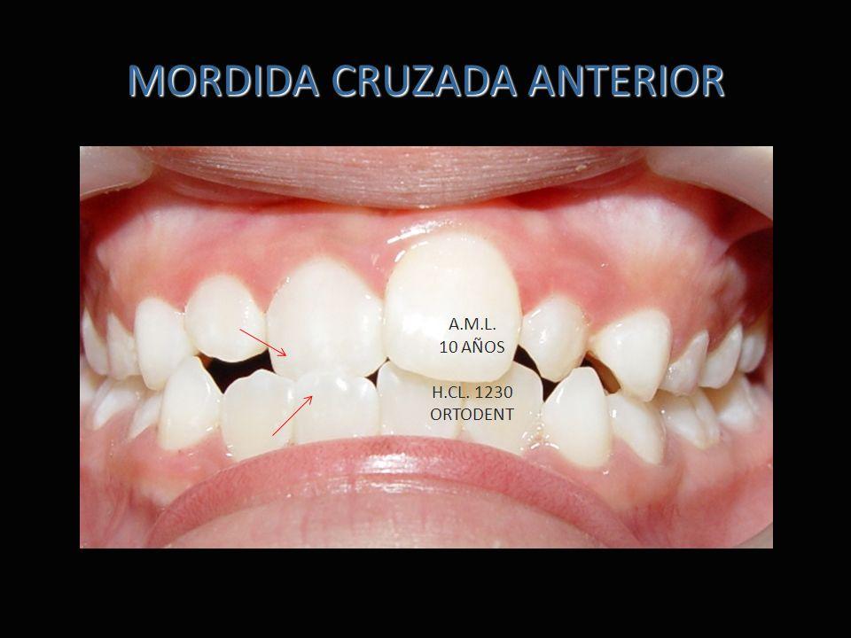 MORDIDA CRUZADA ANTERIOR