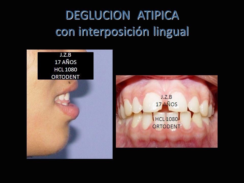 DEGLUCION ATIPICA con interposición lingual