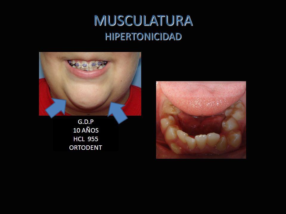 MUSCULATURA HIPERTONICIDAD