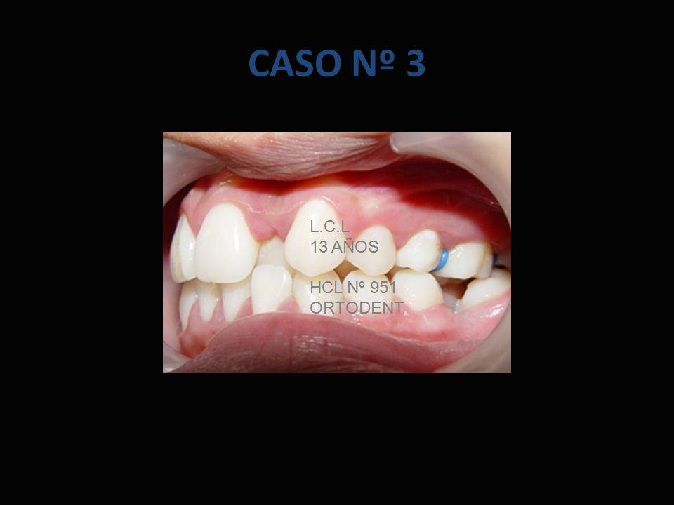 CASO Nº 3