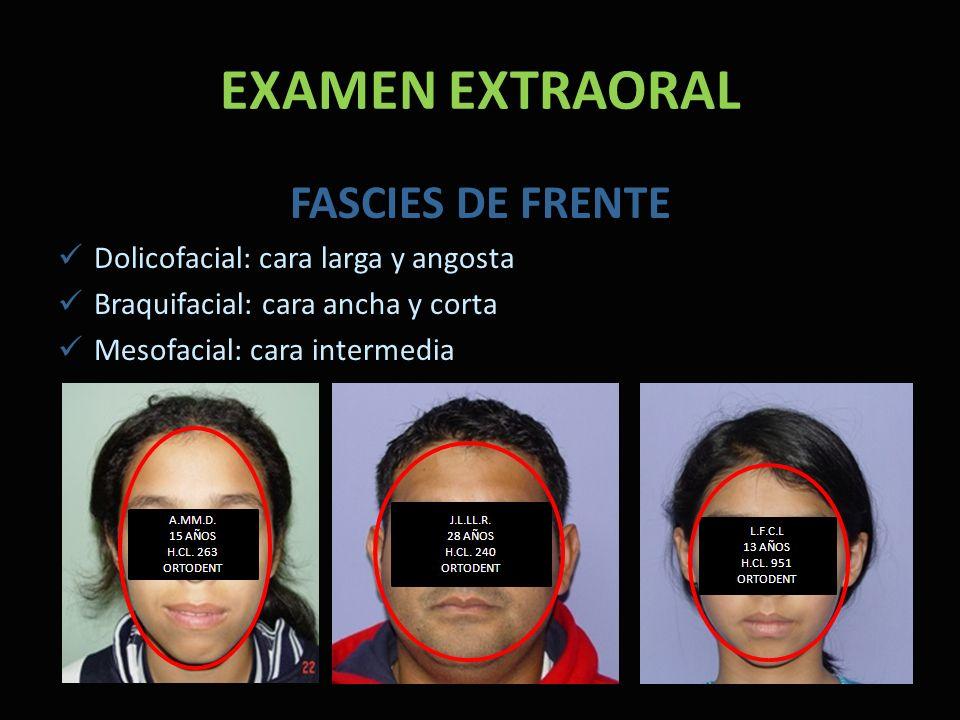 EXAMEN EXTRAORAL FASCIES DE FRENTE Dolicofacial: cara larga y angosta