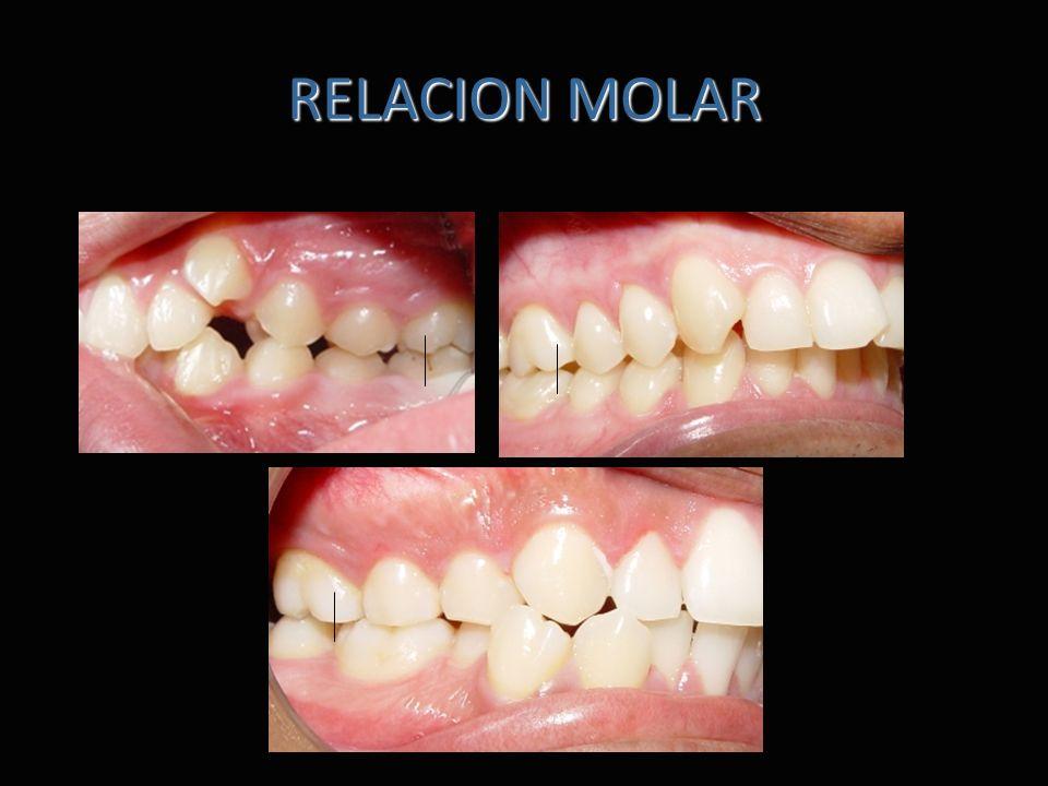 RELACION MOLAR