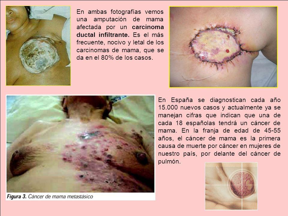 En ambas fotografías vemos una amputación de mama afectada por un carcinoma ductal infiltrante. Es el más frecuente, nocivo y letal de los carcinomas de mama, que se da en el 80% de los casos.