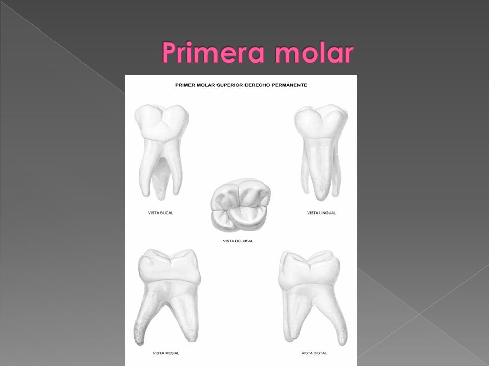 Primera molar