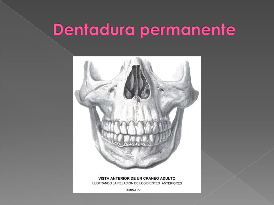 Dentadura permanente