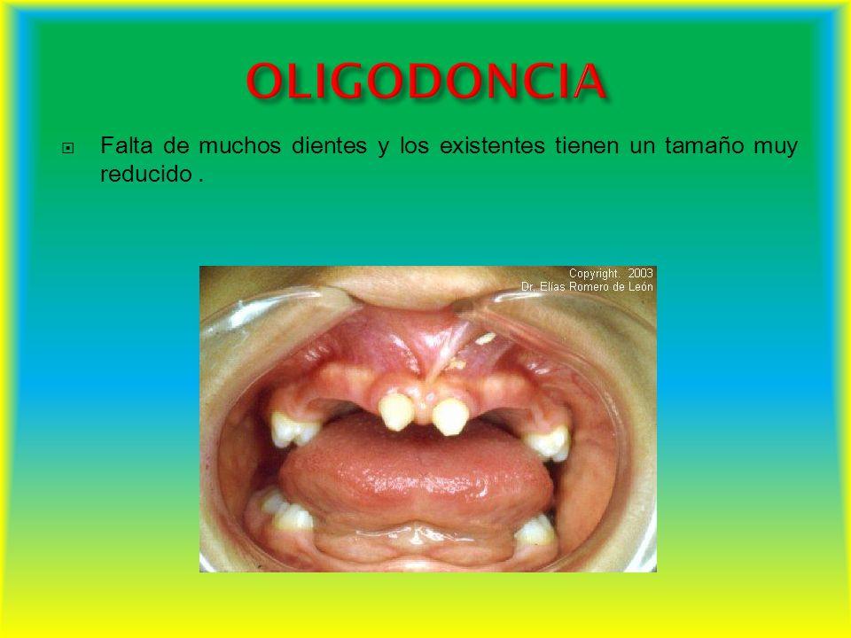 OLIGODONCIA Falta de muchos dientes y los existentes tienen un tamaño muy reducido .