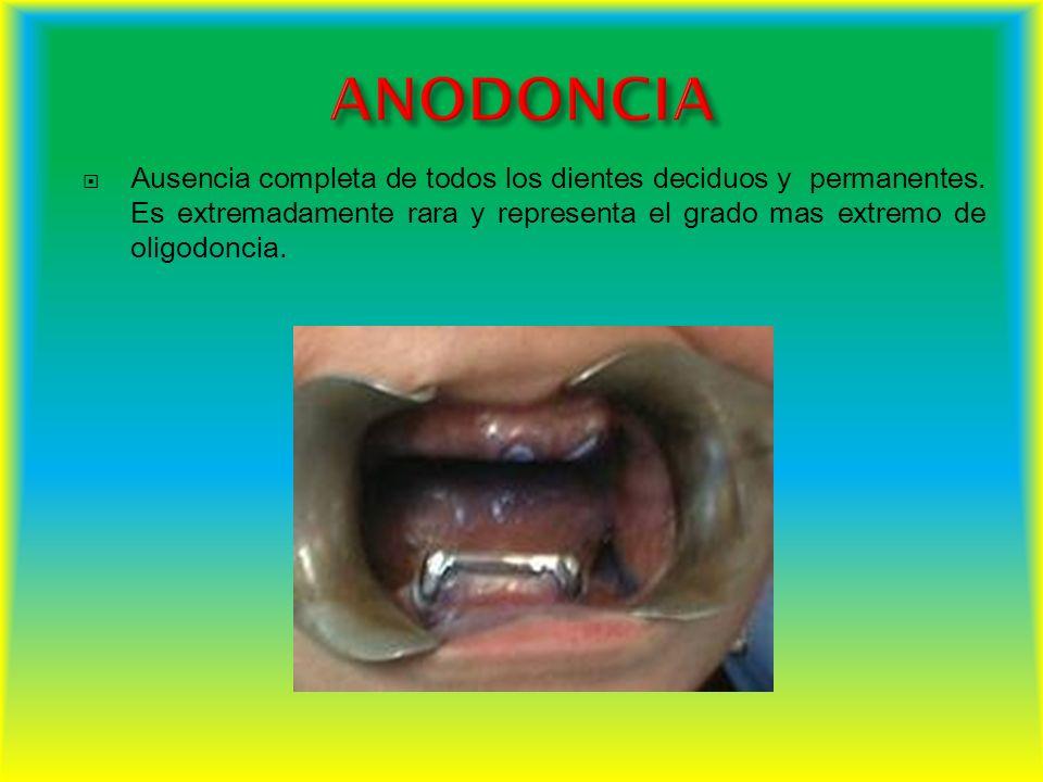 ANODONCIA Ausencia completa de todos los dientes deciduos y permanentes.