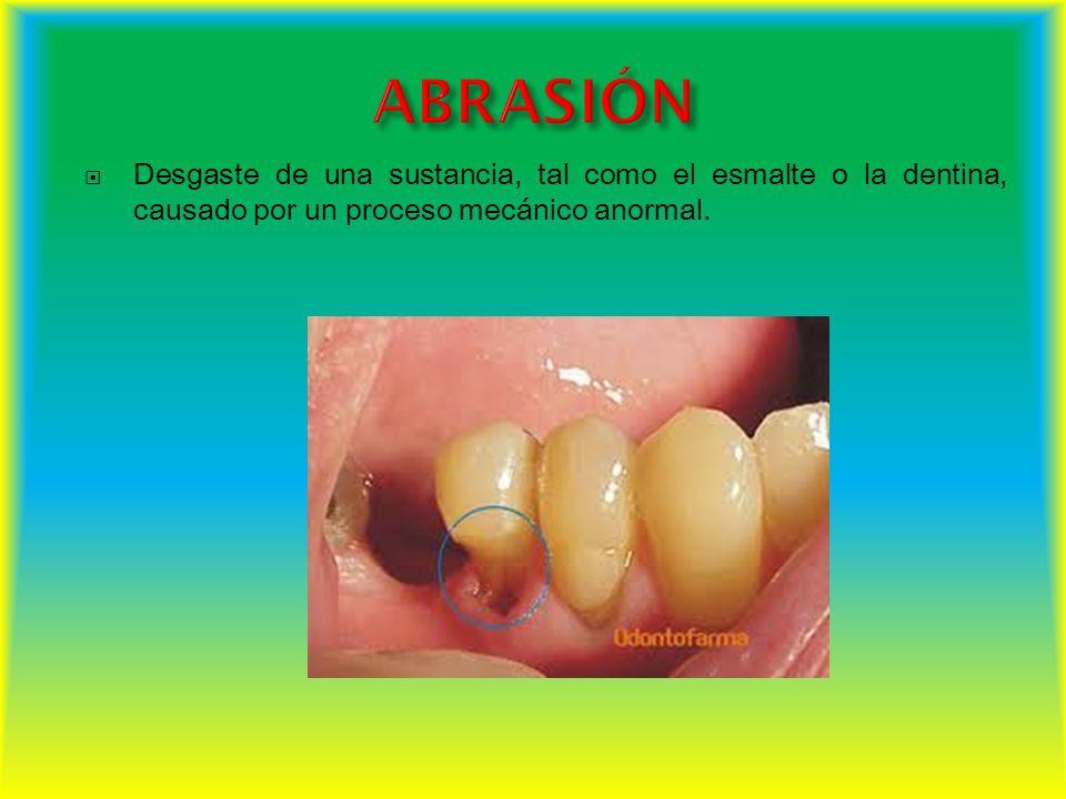 ABRASIÓN Desgaste de una sustancia, tal como el esmalte o la dentina, causado por un proceso mecánico anormal.
