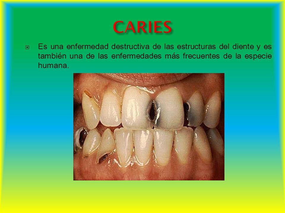 CARIES Es una enfermedad destructiva de las estructuras del diente y es también una de las enfermedades más frecuentes de la especie humana.