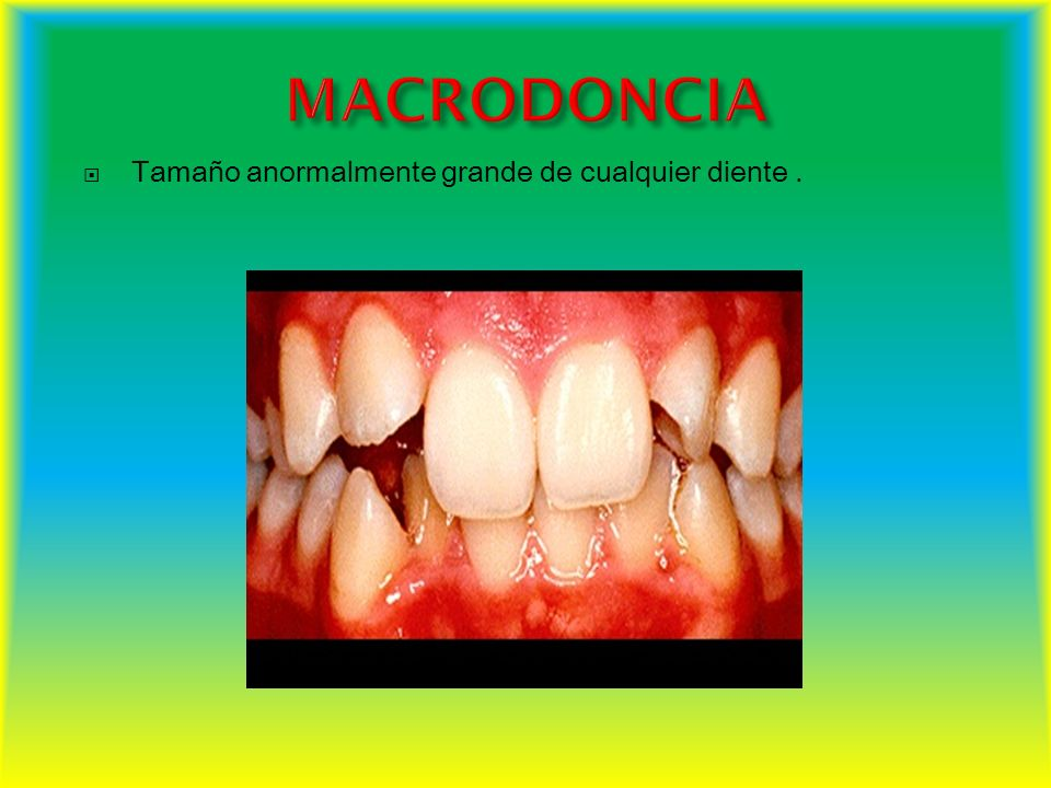 MACRODONCIA Tamaño anormalmente grande de cualquier diente .