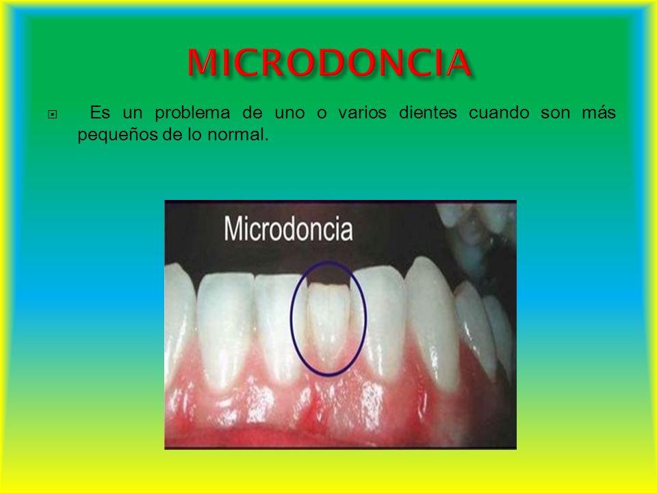 MICRODONCIA Es un problema de uno o varios dientes cuando son más pequeños de lo normal.