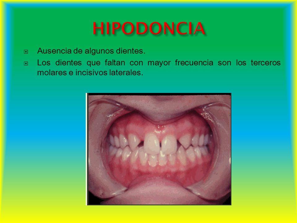 HIPODONCIA Ausencia de algunos dientes.