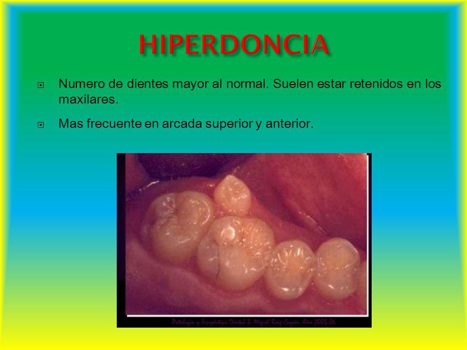 HIPERDONCIA Numero de dientes mayor al normal. Suelen estar retenidos en los maxilares.