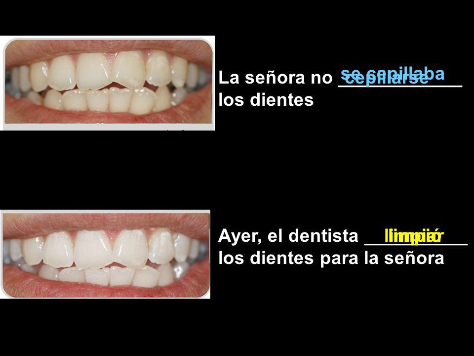 se cepillaba La señora no ____________ los dientes. cepillarse. Ayer, el dentista __________ los dientes para la señora.