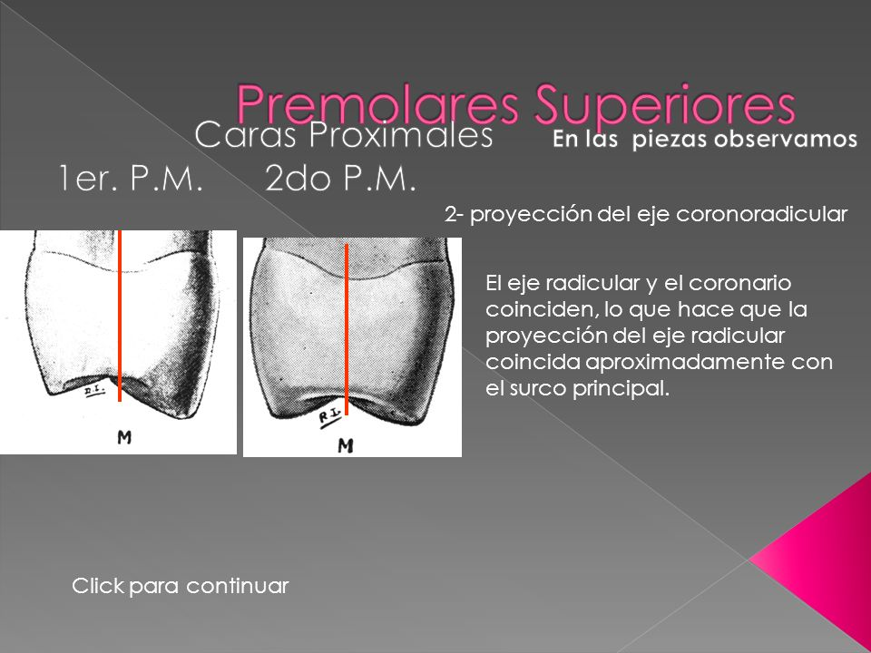 Premolares Superiores