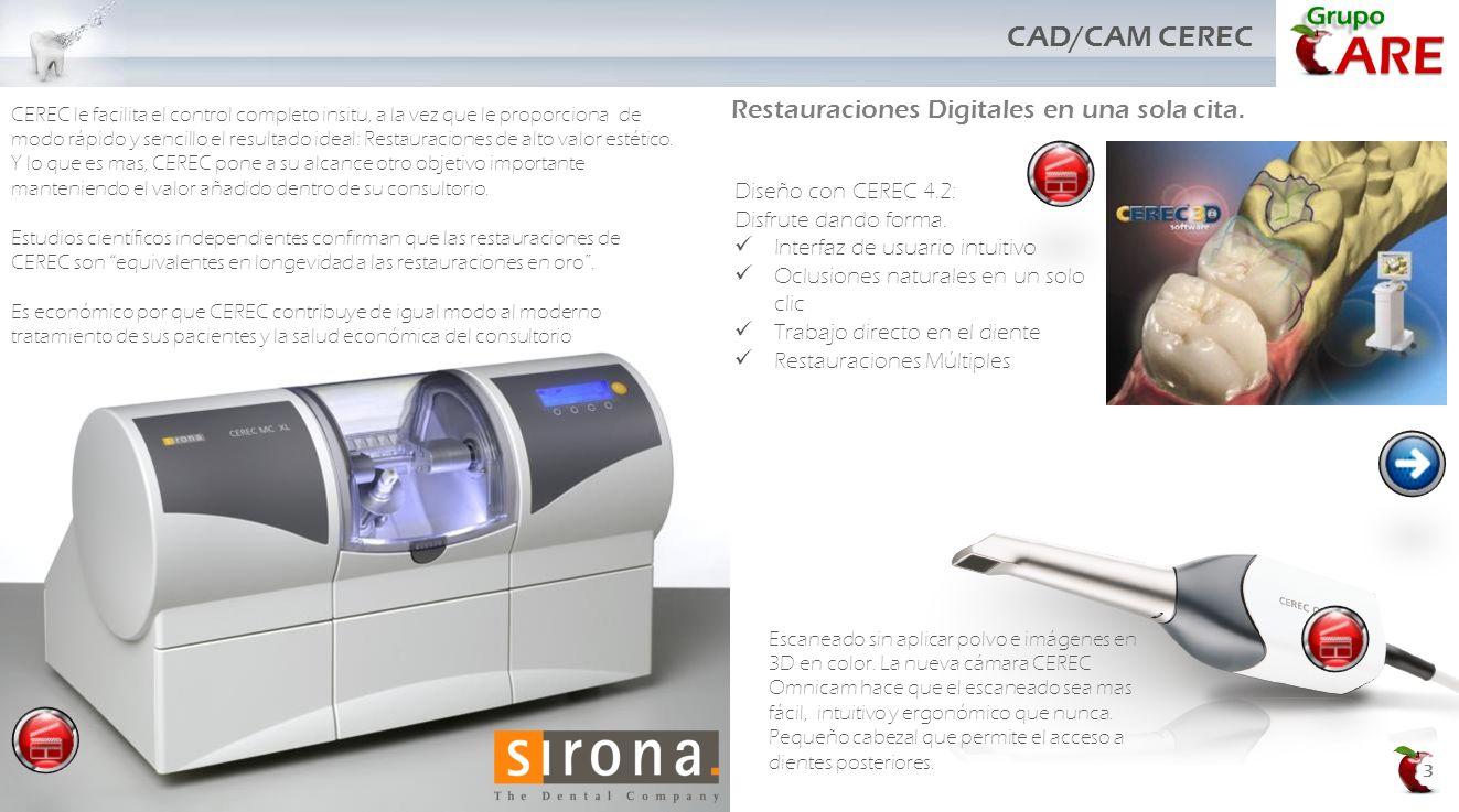CAD/CAM CEREC Restauraciones Digitales en una sola cita.