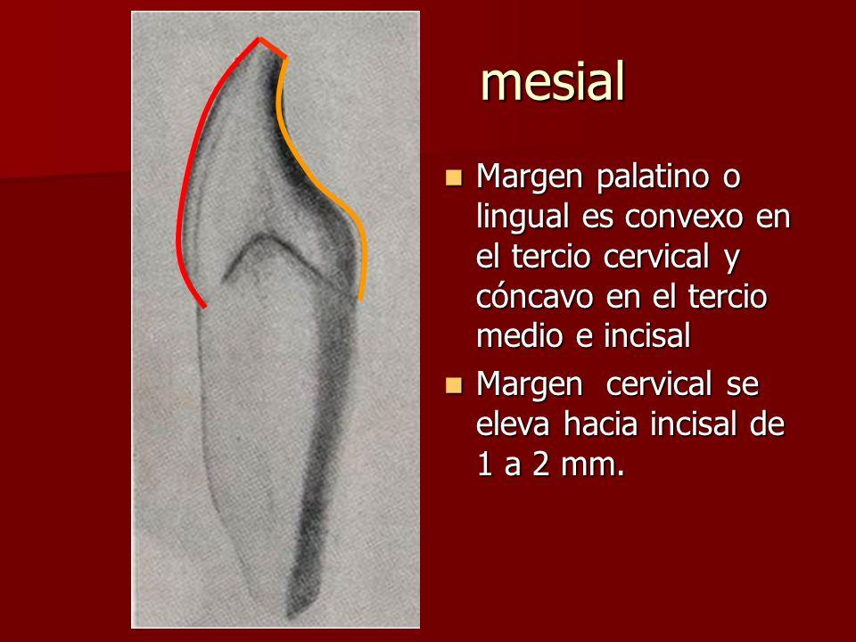mesial Margen palatino o lingual es convexo en el tercio cervical y cóncavo en el tercio medio e incisal.