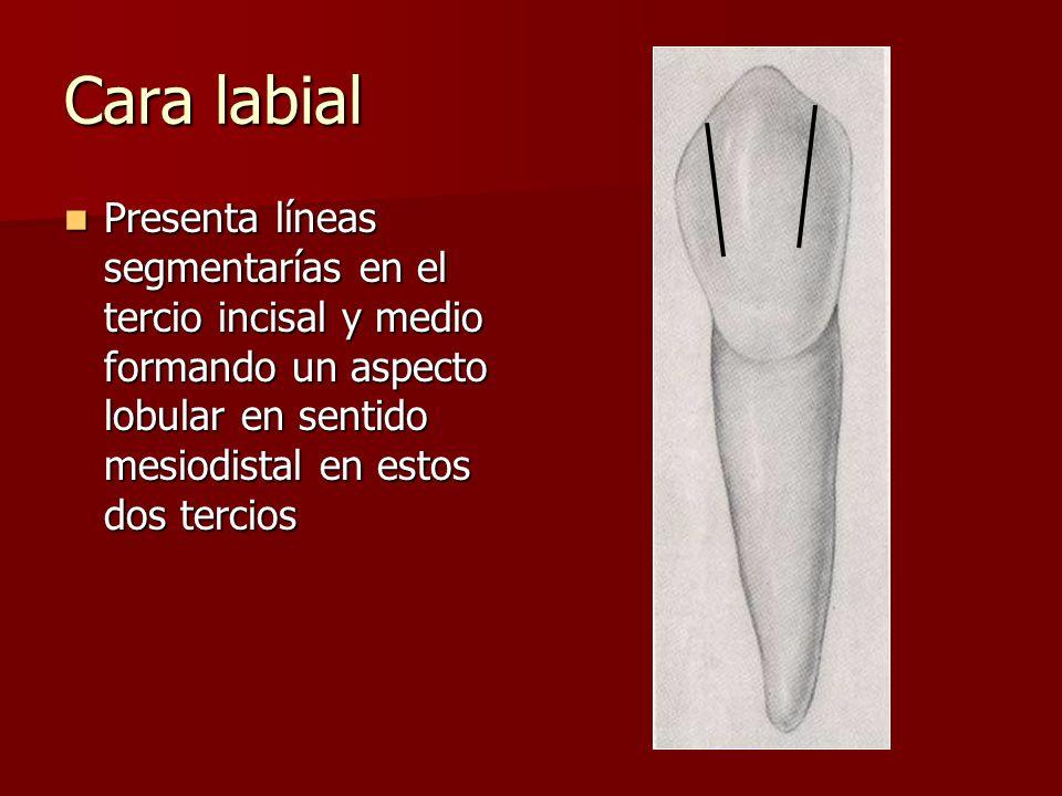 Cara labial Presenta líneas segmentarías en el tercio incisal y medio formando un aspecto lobular en sentido mesiodistal en estos dos tercios.