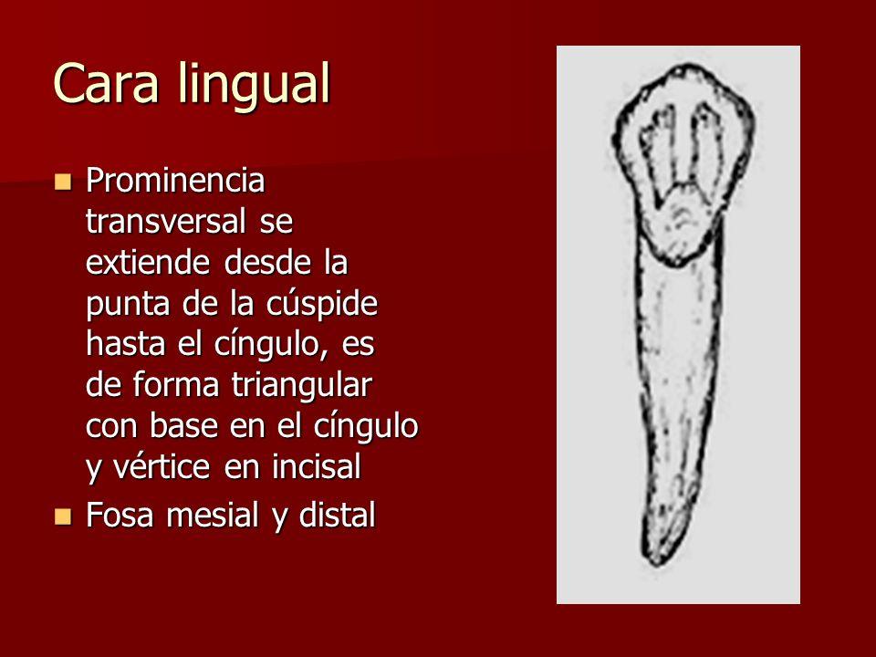 Cara lingual