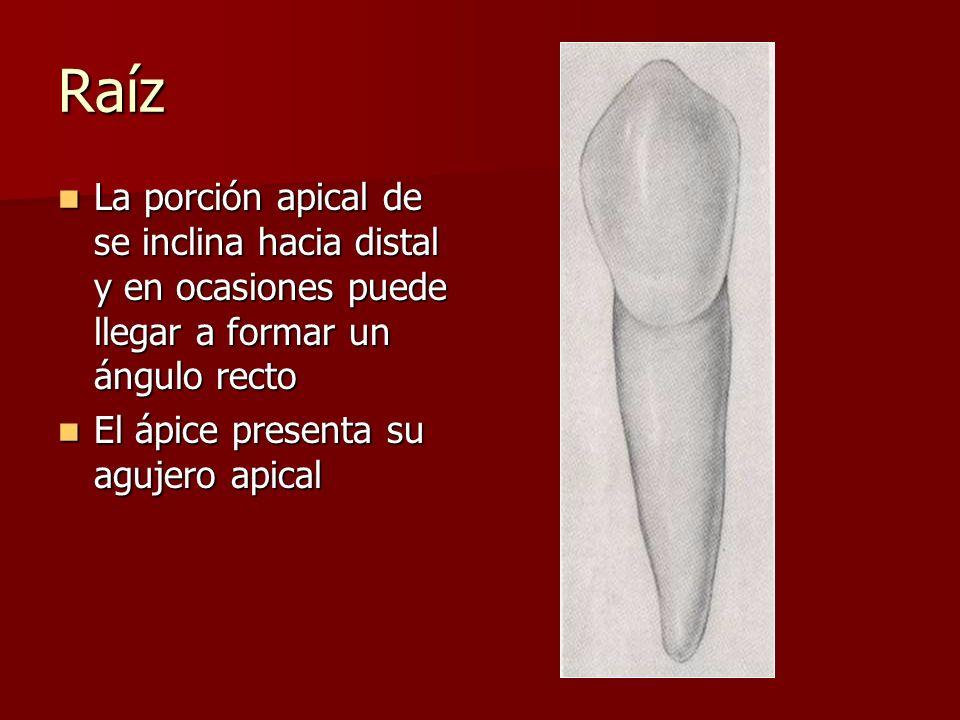 Raíz La porción apical de se inclina hacia distal y en ocasiones puede llegar a formar un ángulo recto.