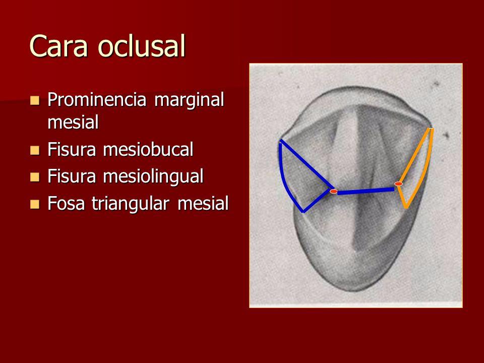 Cara oclusal Prominencia marginal mesial Fisura mesiobucal
