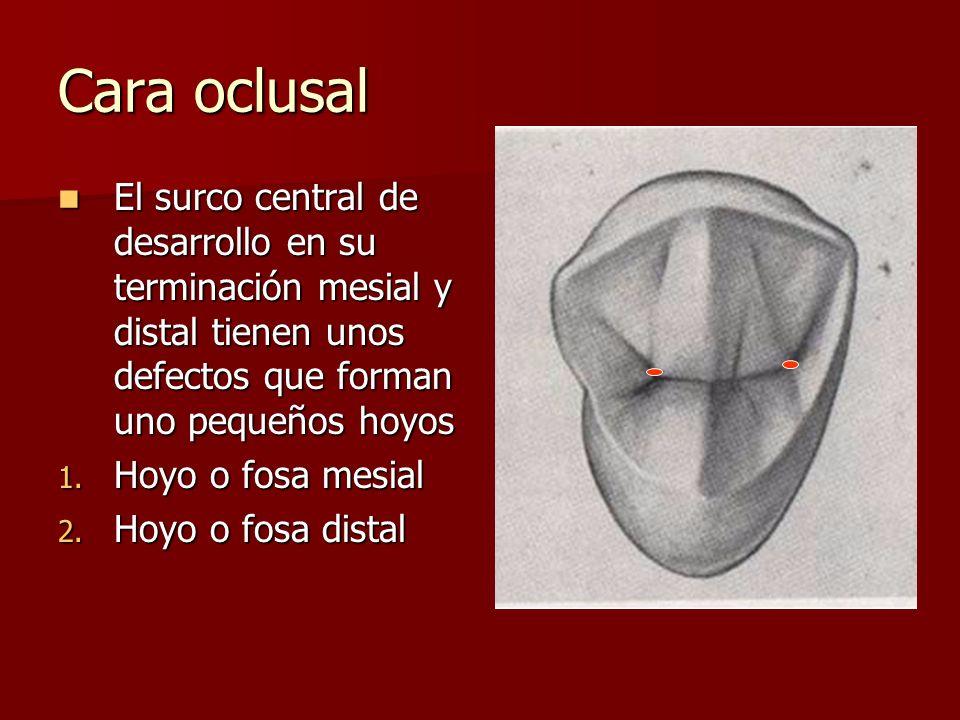 Cara oclusal El surco central de desarrollo en su terminación mesial y distal tienen unos defectos que forman uno pequeños hoyos.