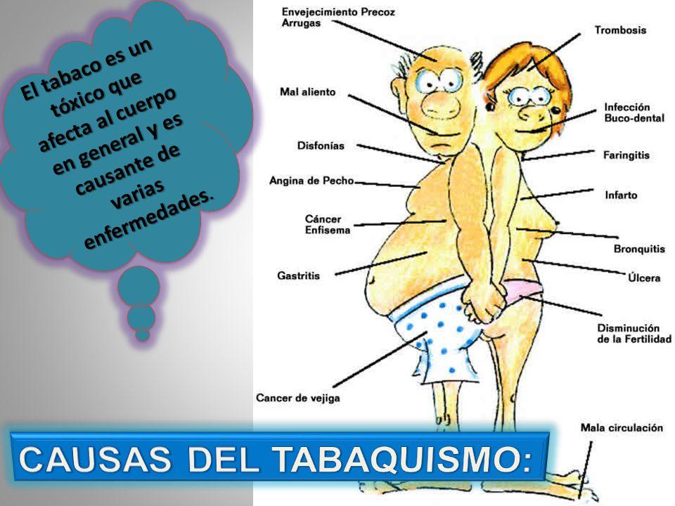 CAUSAS DEL TABAQUISMO: