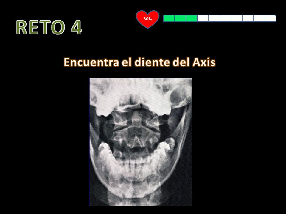 Encuentra el diente del Axis