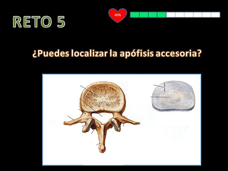 ¿Puedes localizar la apófisis accesoria